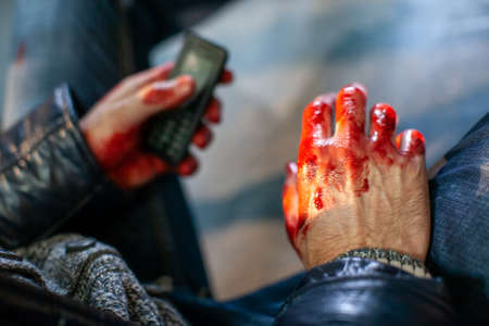 Man hand is covered in blood after an accident in a car Фото со стока