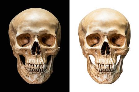 클리핑 패스와 함께 검은 색과 흰색 배경에 고립 된 인간의 두개골 앞면