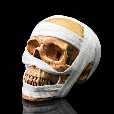 dientes sucios: se unen cráneo humano con el vendaje en fondo oscuro