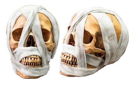 dientes sucios: se unen cráneo humano con el vendaje sucio aislado en el fondo blanco