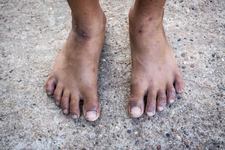 dirty feet: feet Stock Photo