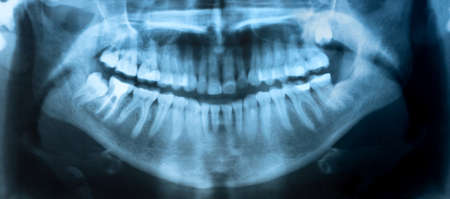 Dental X-Ray. A panoramic x-ray of a mouth, with intact wisdom teeth, one of which is severely impacted.  Stock Photo