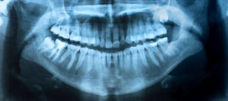 Tandheelkundige röntgenfoto. Een panoramische röntgenfoto van een mond, met intacte verstandskiezen, waarvan er één zwaar wordt beïnvloed. Stockfoto