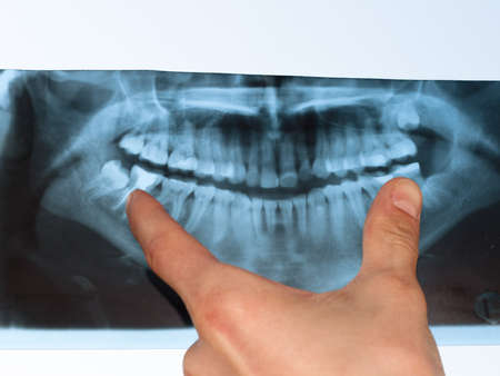 doctor shows a teeth in a x-ray picture Archivio Fotografico