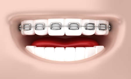 bracket: Illustration of a smile of the person with bracket on teeth