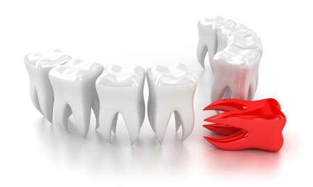 tooth pain: Illustration of a row white teeth with one red nearby Stock Photo