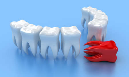 bad teeth: Illustration of a row white teeth with one red nearby Stock Photo