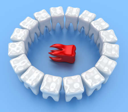 Illustration of a ring white teeth with one in centre Stock Illustration - 14013380