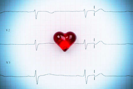 pulse trace: Cardiogram pulse trace and heart concept. Macro, shallow DOF. Stock Photo