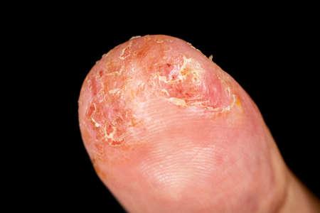 Closeup of eczema dermatitis allergic skin rash on male thumb with skin peeling. . Isolated over black background. Macro. Shallow depth of field.