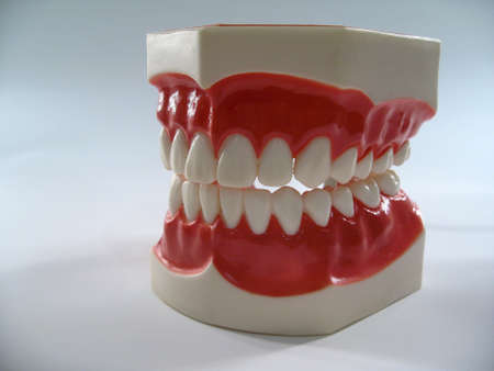 tooth decay: teeth model,plastic dental teeth model ,chattering teeth,mold of a full set of human teeth Stock Photo
