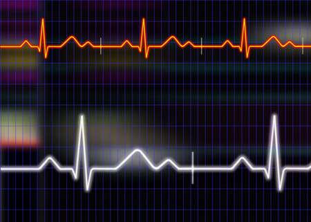 grid background: Cardiogram illustration with grid background