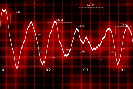 heart rate: Cardiac Frequency Stock Photo