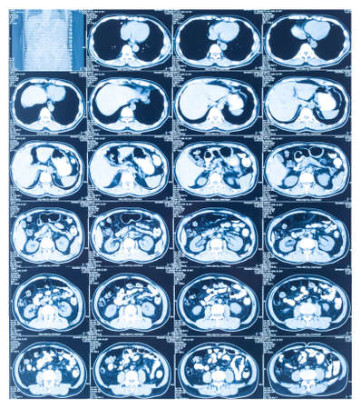 ct scan: Medical diagnosis background. CT scan Stock Photo