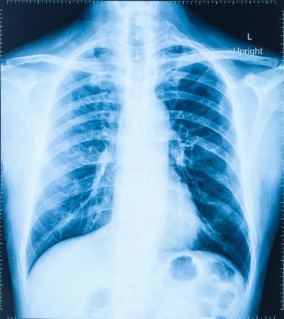 X-Ray Image Of Human Chest for a medical diagnosis Stock Photo - 27126989