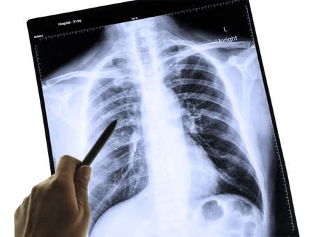 X-Ray Image Of Human Chest for a medical diagnosis and hand pointing 写真素材
