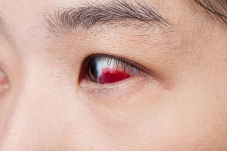redness: Eye injury or infected for healthy concept, macro closeup