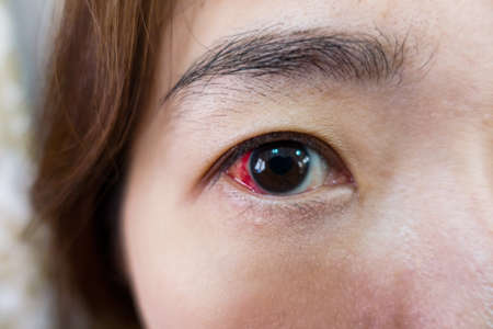 macula: Eye injury or infected for healthy concept, macro closeup