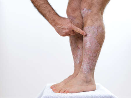 Person suffering from chronic psoriasis indicates with the finger the inflamed part of the legs, on a white background.