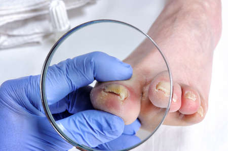 Dermatologist doctor visits the nails of a patient affected by onychomycosis following the action of pathogenic fungi. Stock Photo