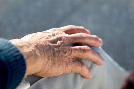 Mano de un abuelo, venas abultadas apoyada en su pierna