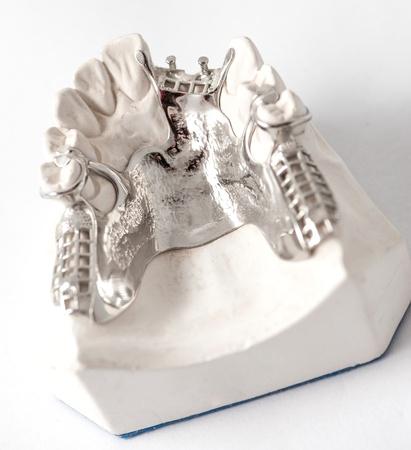 Dental Prothetic laboratory, technical shots photo