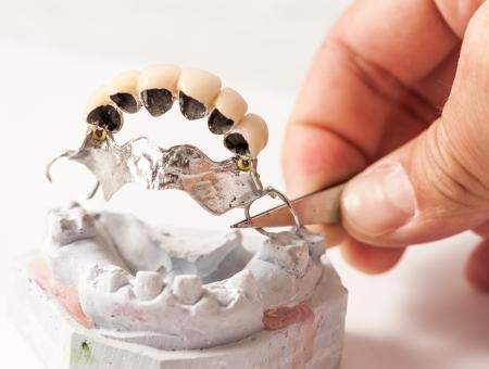 prothèse dentaire: Laboratoire dentaire prothétique, des coups techniques Banque d'images