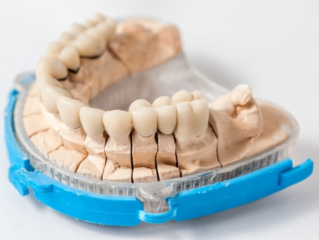 Dental Prothetik Labor, technische Aufnahmen Standard-Bild - 15766192