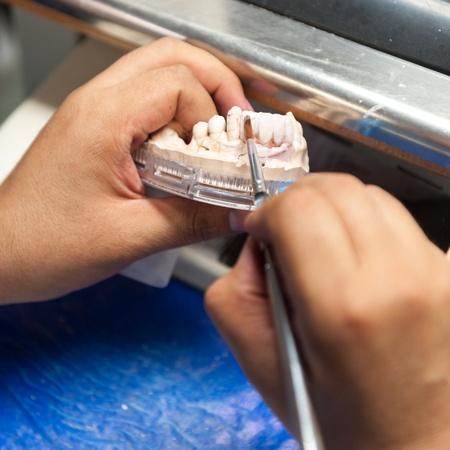 laboratorio dental: Laboratorio dental prot�sica, tiros t�cnicos