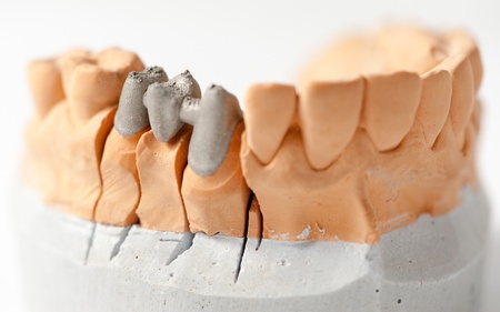 plaster mould: Dental Prothetic laboratory, technical shots