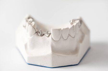 prothetic: Dental Prothetic laboratory, technical shots