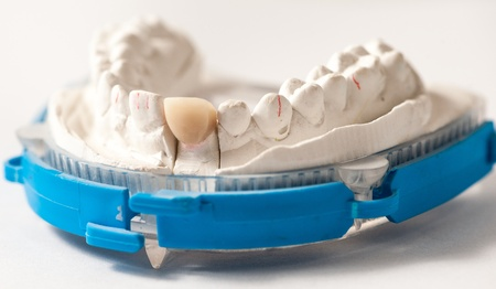 plaster mould: Dental Prothetic laboratory, technical shots