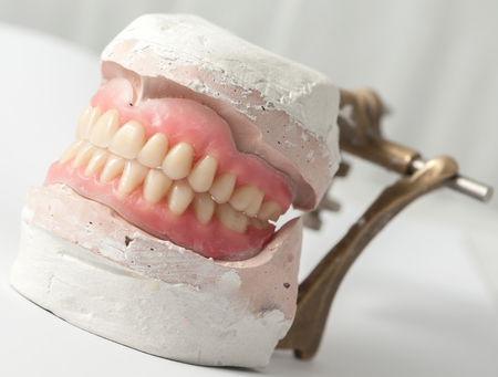plaster mould: Dental plate making of in the lab Stock Photo