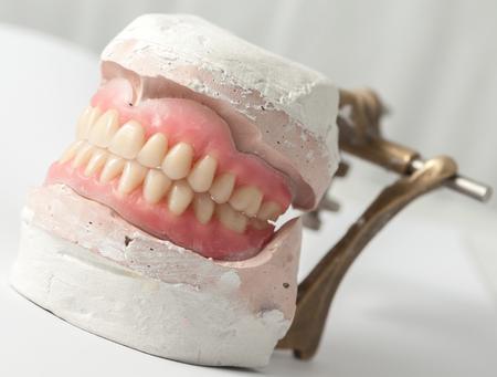laboratorio dental: Fabricación de placa dental de en el laboratorio Foto de archivo