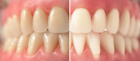 歯のホワイトニング、撮影前に、と後 写真素材