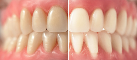 Teeth whitening, before and after shots photo