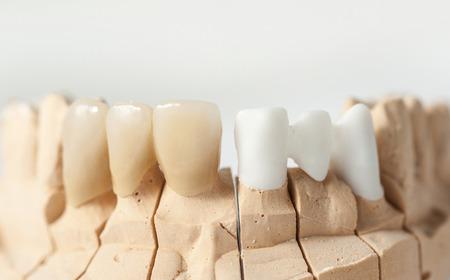 plaster mould: Technical shots on a dental prothetic laboratory