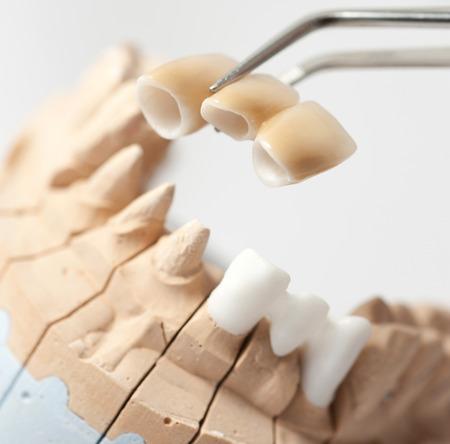 Technische schoten op een tandheelkundige prothetische laboratorium