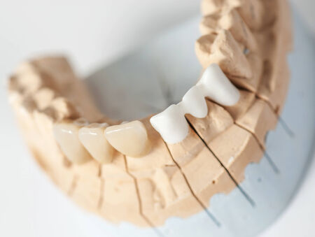 prothetic: Technical shots on a dental prothetic laboratory