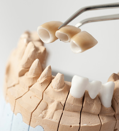 implants: Technical shots on a dental prothetic laboratory