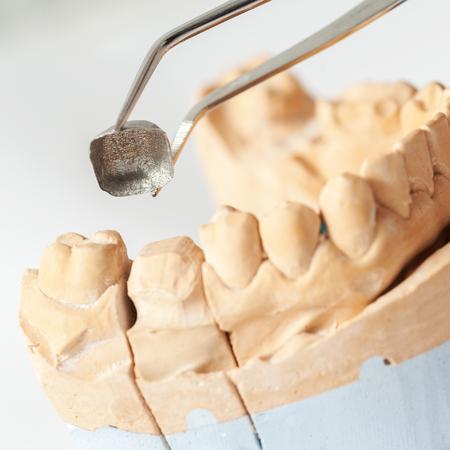 bridgework: Technical shots on a dental prothetic laboratory