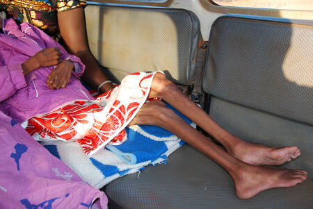 A little girl with the AIDS virus, and a strong malnutrition is unnecessarily succored