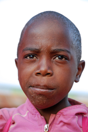 August 2014-Pomerini-Tanzania-Africa-The signs of the disease hiv-aids on a child