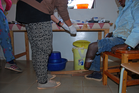 infirmary: 20.08.2014 - Village Pomerini - Tanzania Africa - Medical intervention of volunteer nurses to a mutilated boy in the leg, in the infirmary of the Franciscan Mission in the Village of Pomerini Editorial