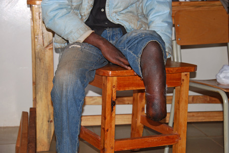 """crippled: \\\\ \\ \  """"20.08.2014 \\\\\\\"""" - \\\\ \\ \  """"Village Pomerini \\\\\\\"""" - Tanzania Africa - \\\\ \\ \  """"Medical intervention of volunteer nurses to a mutilated boy in the leg, in the infirma"""