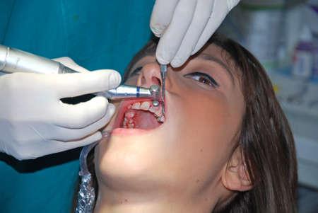 supervisi�n: Una joven mujer sentada en un consultorio dental se someter� a control m�dico Foto de archivo