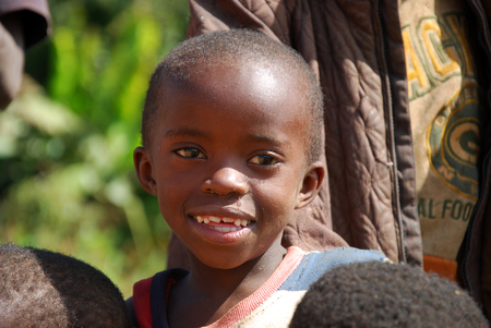 bad teeth: August 8, 2014, Mountain Kilolo, Kilolo, Tanzania, Africa - The intense look of an unidentified African child with bad teeth because of the sugar cane that for many of them is one of the few foods available Editorial