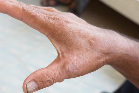 atopic: Skin disorder on hand Stock Photo
