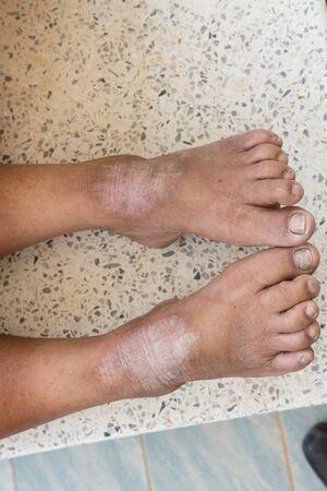 desorden: trastorno de la piel en los pies Foto de archivo