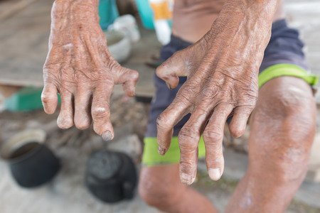 lepra: la enfermedad de Hansen, las manos del primer del hombre de edad que sufren de lepra, la amputaci�n de manos